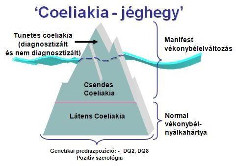 cöliákia tünetek fogyás